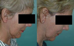 Patient 1e Facelift Before and After