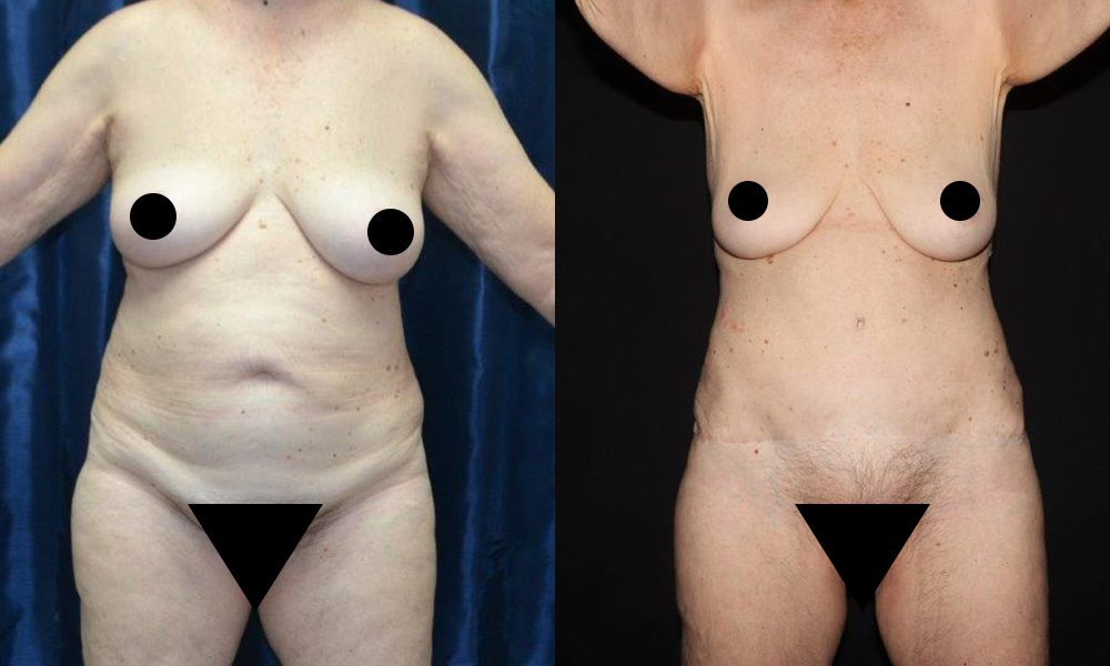 Patient 12a Tummy Tuck Before and After