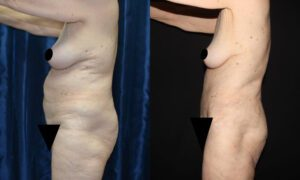 Patient 12c Tummy Tuck Before and After