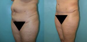 Patient 6a Tummy Tuck Before and After