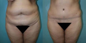 Patient 6b Tummy Tuck Before and After