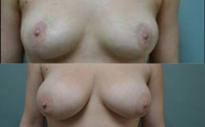 Patient 8a Breast Augmentation Before and After