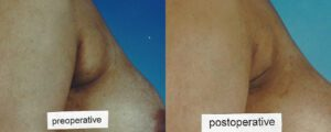 Patient 5b Liposuction Before and After