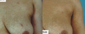 Patient 5c Liposuction Before and After