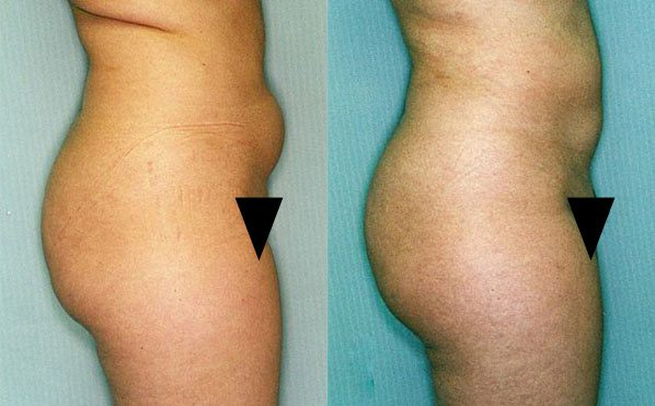 Patient 3 Liposuction Before and After