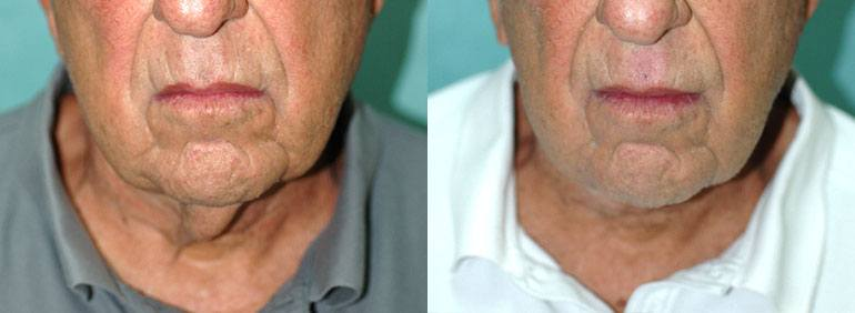 Patient 1a Neck Lift Before and After