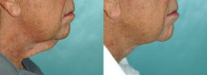Patient 1e Neck Lift Before and After