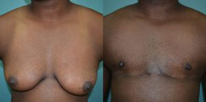 Patient 1a Transgender Plastic Surgery Before and After