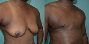 Patient 1c Transgender Plastic Surgery Before and After