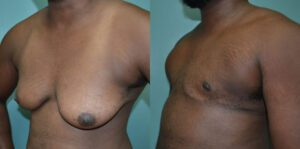 Patient 1b Transgender Plastic Surgery Before and After