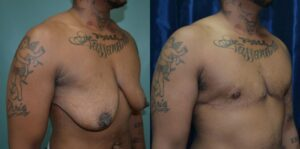 Patient 2e Transgender Plastic Surgery Before and After