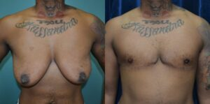 Patient 2a Transgender Plastic Surgery Before and After