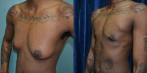 Patient 3e Transgender Plastic Surgery Before and After