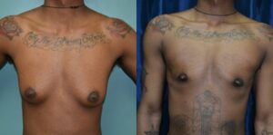 Patient 3d Transgender Plastic Surgery Before and After