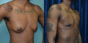 Patient 3c Transgender Plastic Surgery Before and After