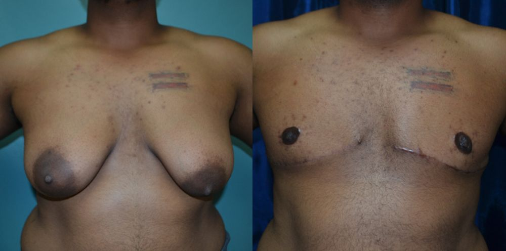 Patient 4 Transgender Plastic Surgery Before and After