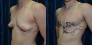 Patient 5a Transgender Plastic Surgery Before and After