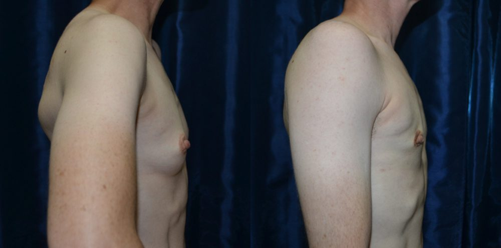Patient 6a Transgender Plastic Surgery Before and After