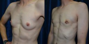 Patient 6d Transgender Plastic Surgery Before and After