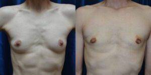 Patient 6e Transgender Plastic Surgery Before and After