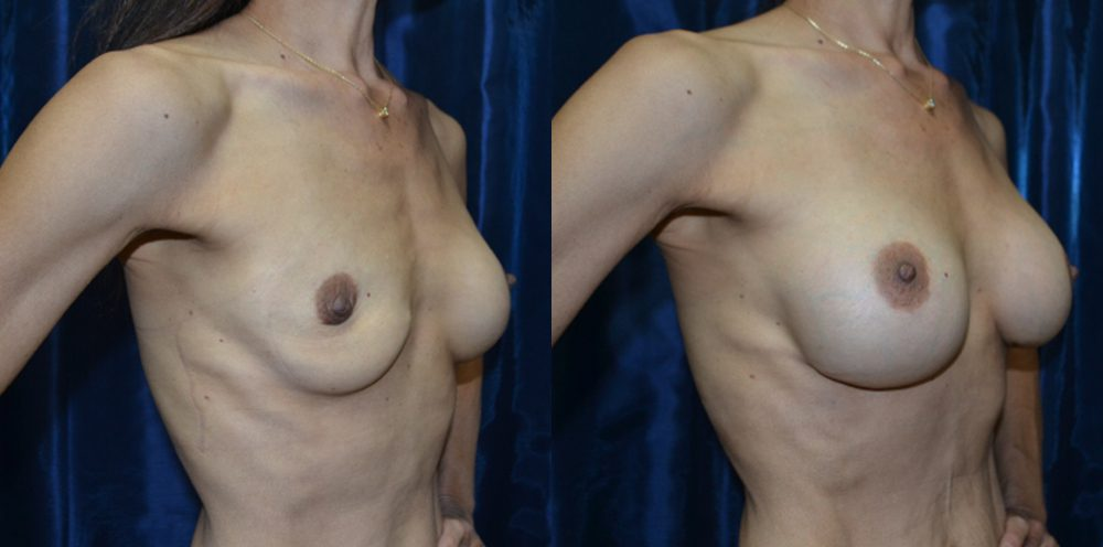 Patient 2a Breast Revision Before and After