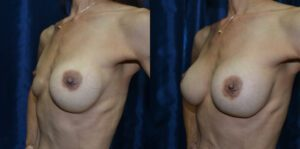 Patient 2d Breast Revision Before and After
