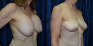 Patient 3a Breast Revision Before and After