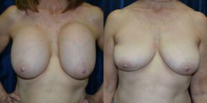 Patient 3c Breast Revision Before and After