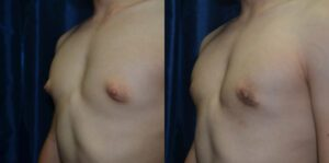 Patient 3a Gynecomastia Before and After