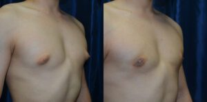 Patient 3b Gynecomastia Before and After