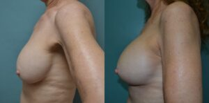 Patient 1c Breast Revision Before and After