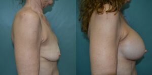 Patient 1e Breast Revision Before and After