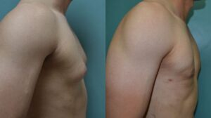 Patient 1b Gynecomastia Before and After