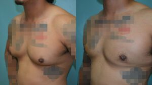 Patient 2d Gynecomastia Before and After