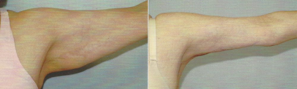 Patient 3a Arm Lift Before and After