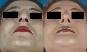 Patient 1c Rhinoplasty Before and After