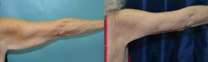 Patient 4b Arm Lift Before and After