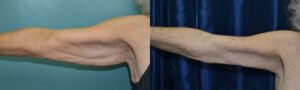 Patient 4c Arm Lift Before and After
