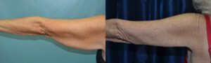 Patient 4d Arm Lift Before and After