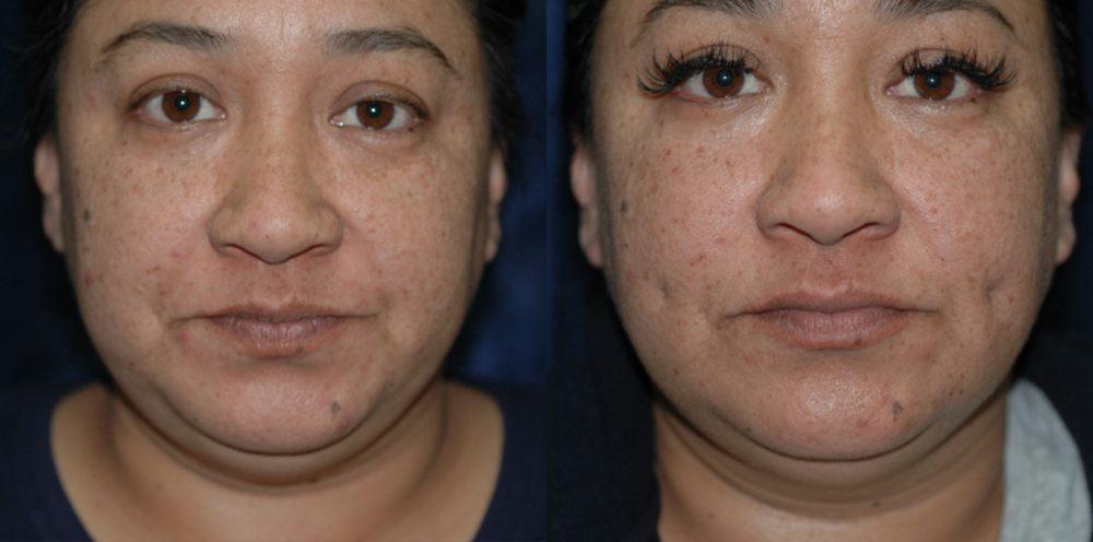 Patient 1 Dimpleplasty Before and After
