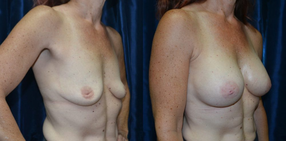 Patient 17a Breast Augmentation Before and After
