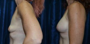 Patient 17e Breast Augmentation Before and After