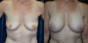 Patient 17c Breast Augmentation Before and After