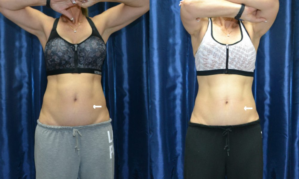 Patient 2 CoolSculpting Before and After