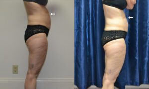 Patient 3a CoolSculpting Before and After