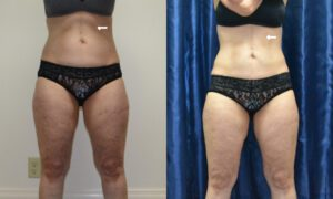 Patient 3b CoolSculpting Before and After