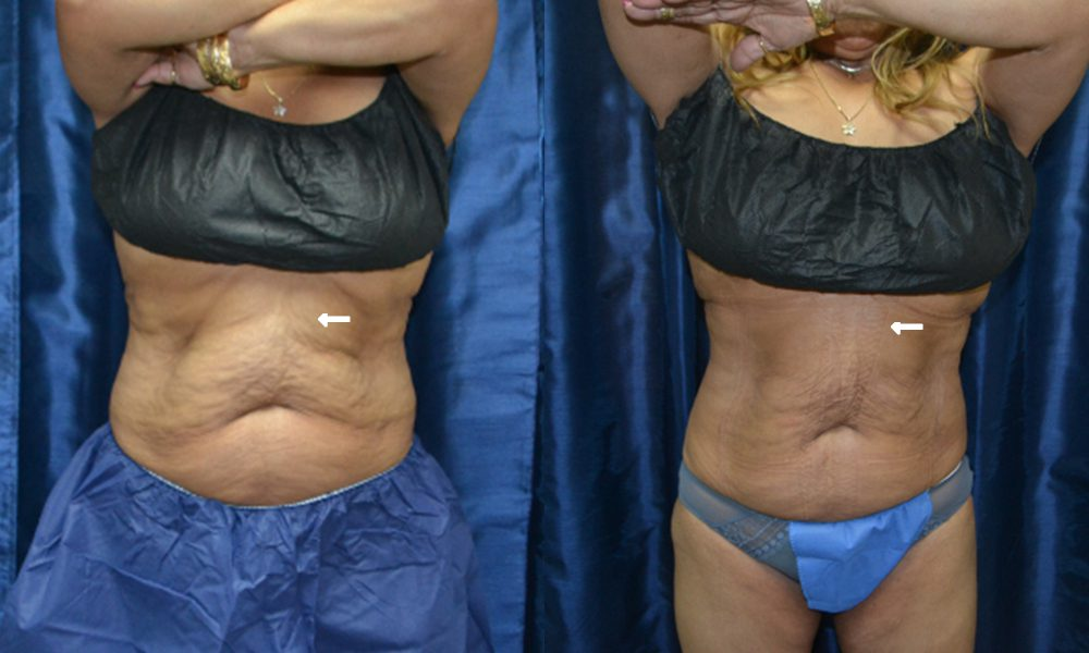 Patient 5 CoolSculpting Before and After