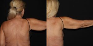 Patient 6b CoolSculpting Before and After