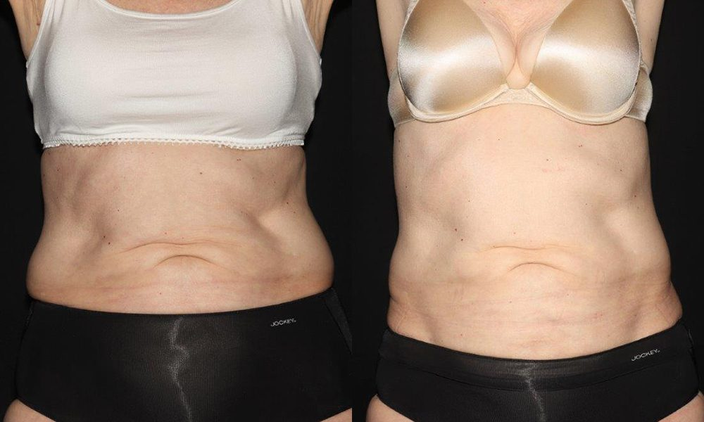 Patient 7a CoolSculpting Before and After