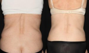 Patient 7e CoolSculpting Before and After